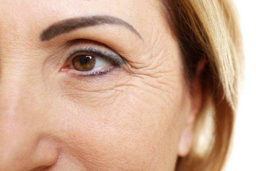 prevenir patas de gallo en contorno de ojos